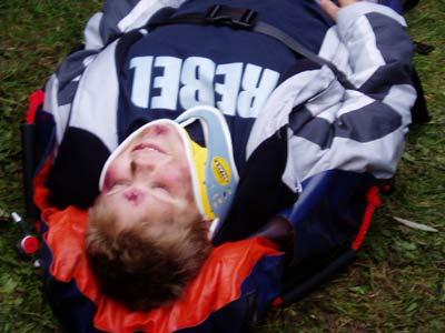Das verletzte Opfer - der originale Darsteller, der Monate zuvor den Unfall erlitt.